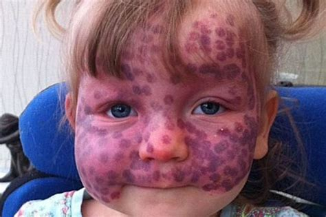 Meet the brave five-year-old girl with rare 'polka dot