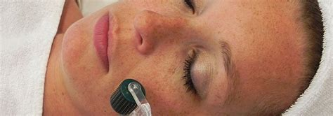 You are here: Home / Blog / All Articles / Micro Needling