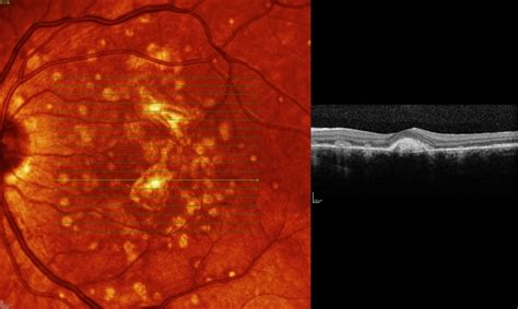 Punctate Inner Choroidopathy Complicated with CNV - Retina